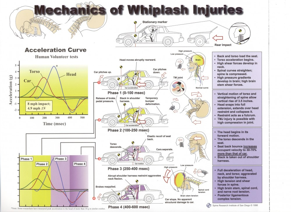 Mechanics of whiplash injuries